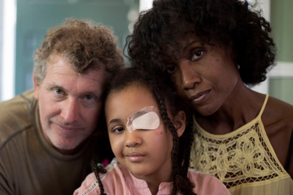 Mom and dad with their daughter with a bandage over her eye